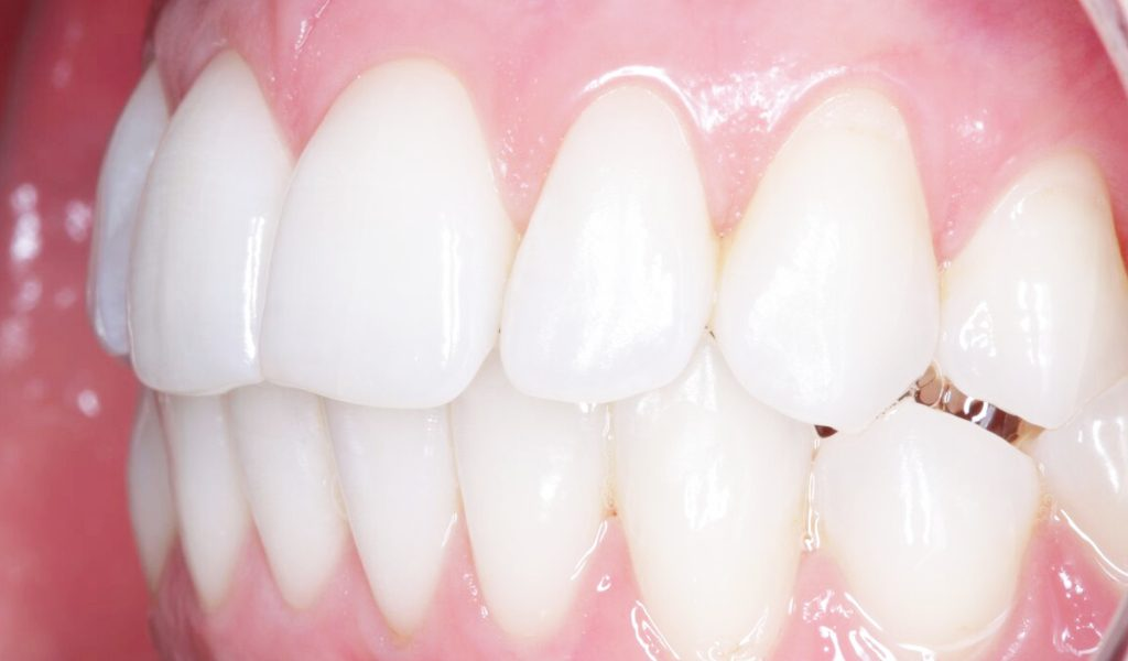 Invisalign and teeth whitening case